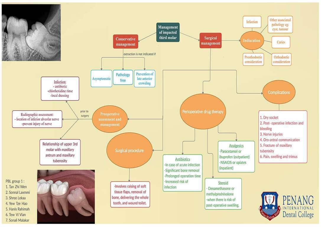 Management-of-Impacted-wisdom-teeth